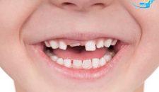 Răng trẻ em – Quá trình mọc và thay răng
