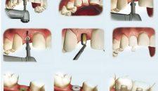 Thời gian trồng răng implant mất bao lâu là có thể phục hồi