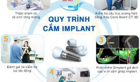 Quy Trình Cắm Ghép Răng Implant Đúng Chuẩn của Bộ Y Tế