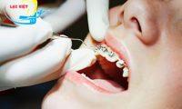Quy trình niềng răng hô thế nào mới đạt chuẩn Y khoa quốc tế?