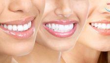 Quy trình trồng răng giả đảm bảo an toàn và đúng tiêu chuẩn