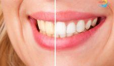 Tẩy trắng răng giá bao nhiêu là hợp lý – Bảng giá mới nhất 2017