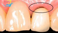 Cùng làm rõ bọc răng sứ titan có bị đen viền như lời đồn?