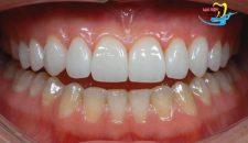 Bật mí nguyên nhân tại sao phải bọc răng sứ Veneer