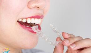 Niềng răng trong suốt có đau không, giá bao nhiêu là hợp lý