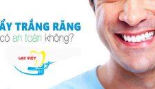 Làm rõ tẩy trắng răng có an toàn không- Nên tẩy trắng răng hay không