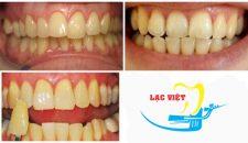 Tẩy trắng răng bằng máng- Cách tẩy trắng răng hiệu quả và an toàn nhất 2017