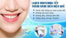 Những cách tẩy trắng răng an toàn và hiệu quả