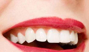 Cùng tìm hiểu tẩy trắng răng là gì và những ưu nhược điểm