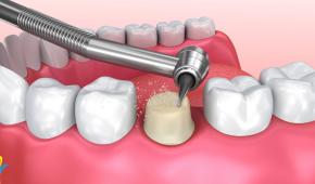 Bọc răng sứ có hại không? Có ảnh hưởng đến sức khỏe răng miệng?