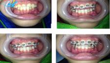 Thời gian niềng răng móm trong bao lâu, có rút ngắn được không?