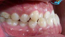 Niềng răng móm bao lâu đạt kết quả và phương pháp nhanh nhất