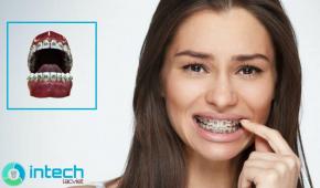Tìm hiều về quá trình siết răng khi niềng là gì?