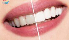 Răng sứ titan là gì và đâu là đối tượng phù hợp để làm răng sứ titan