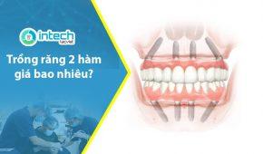 Trồng răng 2 hàm giá bao nhiêu, những điều cần lưu ý?
