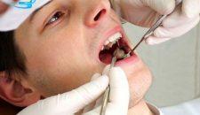 Trám răng sâu – Giải pháp điều trị sâu răng hiệu quả nhất!