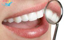 Trọn gói trám răng thưa bao nhiêu tiền là hợp lý nhất?