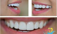 Trám răng thẩm mỹ và những điều cần biết