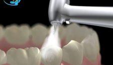 Răng thưa có trám được không và có nên trám răng thưa không?