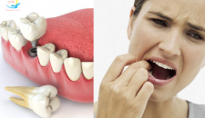Trồng Implant răng hàm uy tín, an toàn dưới góc nhìn chuyên gia