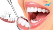Chi phí trồng răng giả cố định giá bao nhiêu tiền năm 2017?