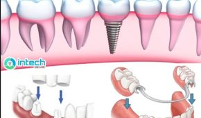 Khi nào cần trồng răng hàm, trồng răng hàm có đau không?