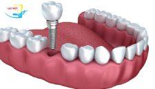 Nên trồng răng hàm số 7 theo phương pháp nào thì tốt nhất?
