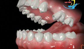 Tìm hiểu: Trồng răng sứ cố định giá bao nhiêu là hợp lý