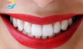 Nên lựa chọn trồng răng sứ trả góp ở đâu?