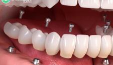 Chi phí trồng răng giả nguyên hàm implant bao nhiêu tiền?