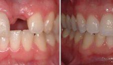Chi phí trồng 1 răng giả giá bao nhiêu tiền?