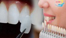 Trồng răng giả có ảnh hưởng gì không và cách nào là tối ưu nhất?