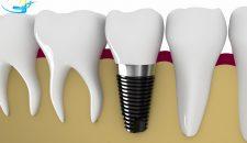 Trồng răng giả Implant giá bao nhiêu tiền?