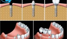 Trồng răng giả mất bao lâu và phụ thuộc vào những yếu tố nào?
