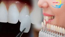 Tìm hiểu về các phương pháp trồng răng nanh ma cà rồng.