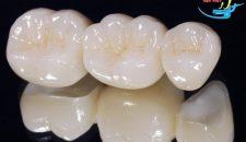 Trồng răng sứ có tốt không?
