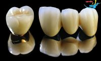 Một số lợi ích của trồng răng sứ kim loại bạn nên biết.