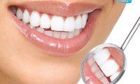 Trồng răng sứ như thế nào để đảm bảo an toàn, hiệu quả dài lâu?