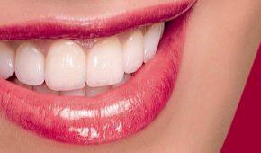 Trồng răng sứ thẩm mỹ giá bao nhiêu tiền?