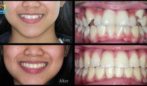 Quy trình niềng răng khểnh chi tiết tại nha khoa Lạc Việt