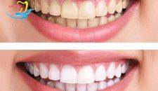 Cùng tìm hiểu tẩy trắng răng laser whitening giá bao nhiêu là hợp lý
