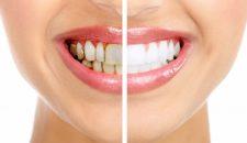 Tẩy trắng răng bằng đèn Plasma có tốt – Liệu có nên tẩy trắng?