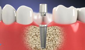 Trường hợp nào nên trồng răng implant?