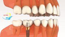 Ưu điểm của cấy ghép implant nha khoa là gì?