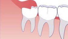 Răng khôn mọc thẳng có nên nhổ không?